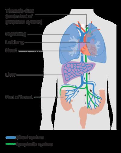 Metastatic Bowel Cancer Bowel Cancer Nz
